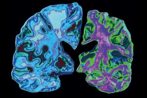 Alzheimer's disease 2